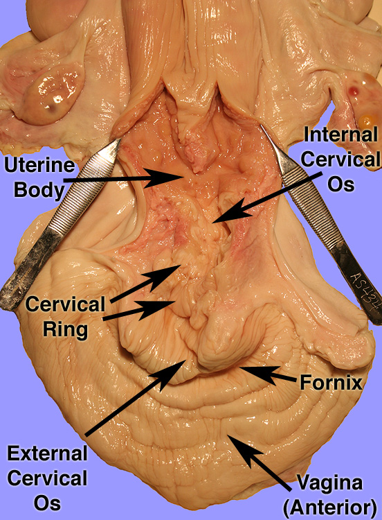 Annular Rings Cervix