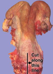 cut inside of vagina jpg 1200x900