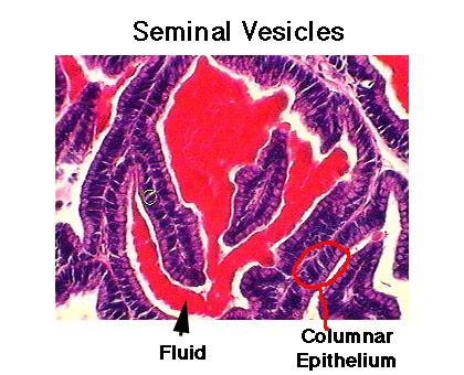 semianl vesicles 2