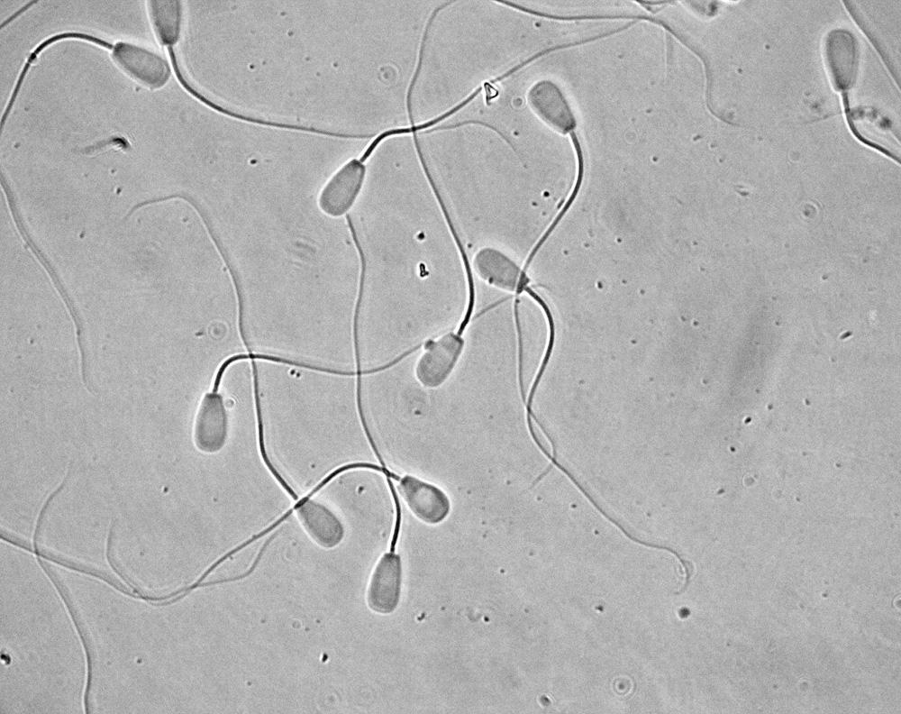 abnormalities bovine sperm causes morphology