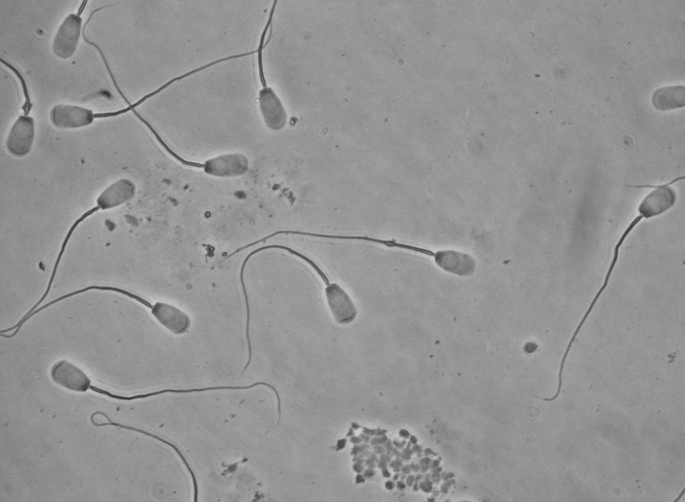 Proximal droplets in bovine sperm