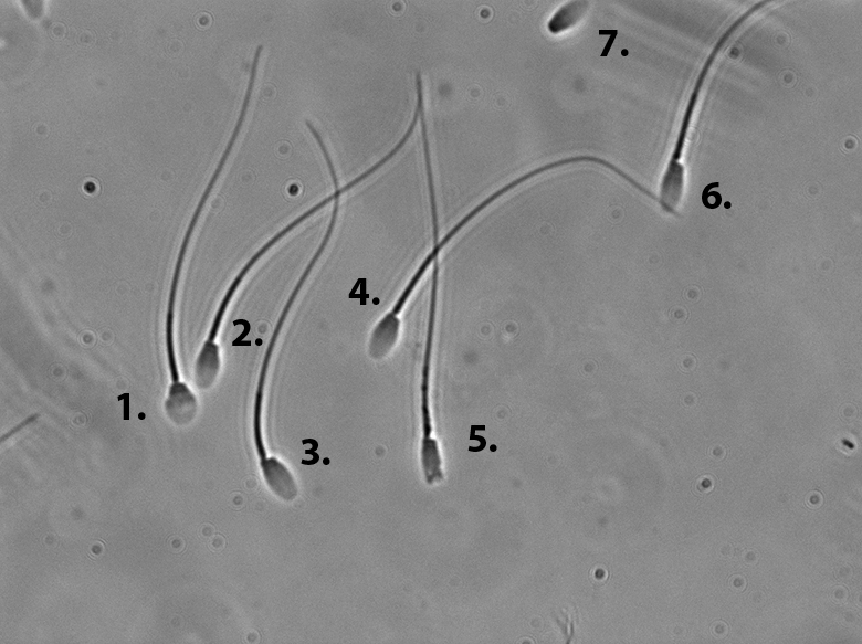 morphology causes sperm ejacualtion Infrequent poor