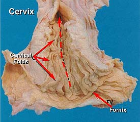 Mare Anatomy: Cervix and Uterus